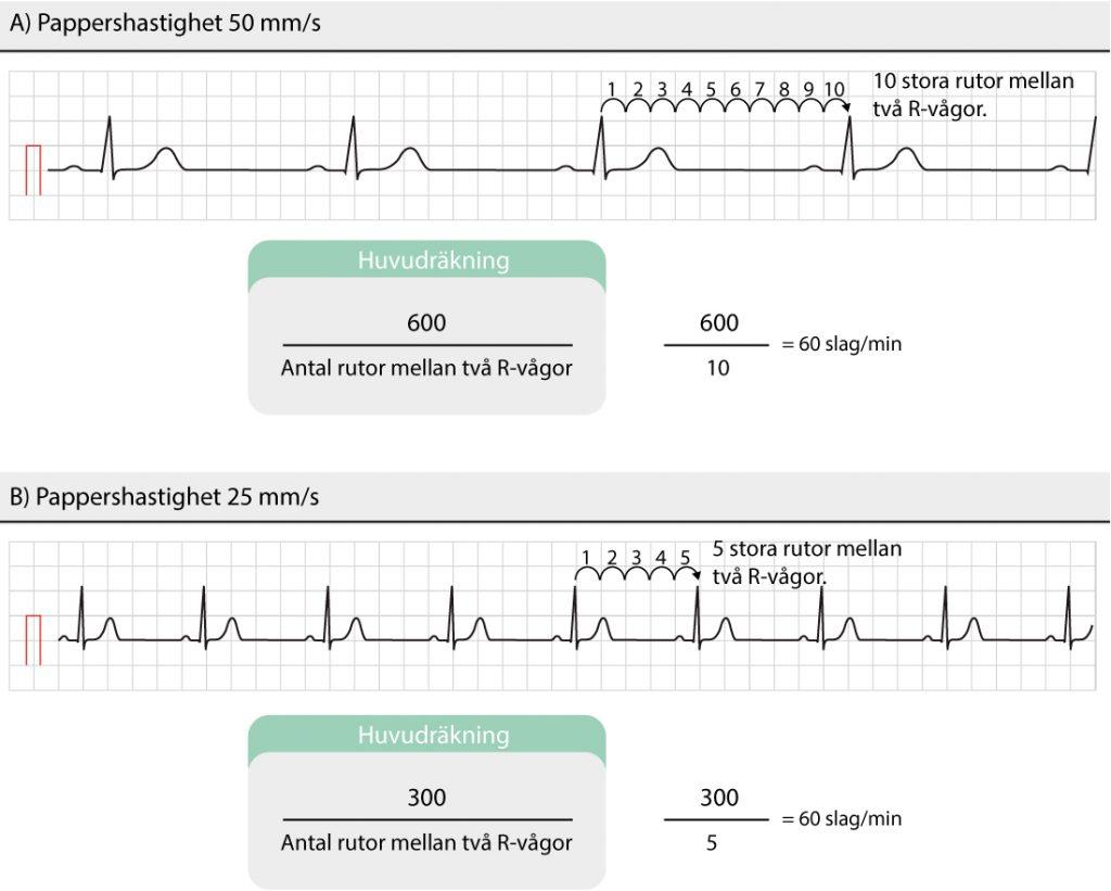 Figur 39. Uppskattning av hjärtfrekvensen utifrån EKG-remsan.Man behöver inte använda R-vågor; det går lika bra att mäta antal stora rutor mellan P-vågor, T-vågor eller någon annan struktur som återkommer regelbundet och som ger en enkel beräkning.