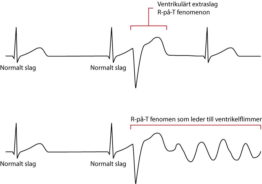 Figur 6B. R-på-T fenomen