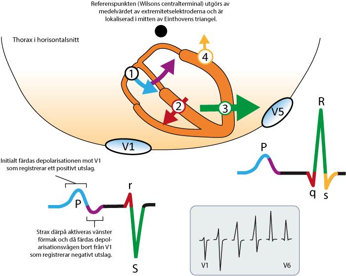 Figur 10. Hjärtats huvudsakliga vektorer, sett ur horisontalplanet. V1 och V5 är explorerande. Referenspunkten utgörs av en sammanvägning av elektroderna på extremiteterna (WCT). I denna figuren är WCT placerad bakom hjärtat av pedagogiska skäl. Den nedre rutan visar hur mönstret i V1 successivt övergår till mönstret i V6.