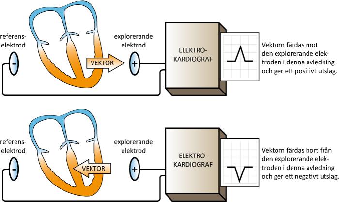 """Figur 13. Elektrokardiografen skapar en avledning genom att jämföra potentialskillnaden i två mätpunkter. Den ena punkten är explorerande och utgörs alltid av en elektrod. Referenspunkten kan utgöras av en elektrod eller en sammankoppling av flera elektroder. Hjärtat """"betraktas"""" från den explorerande elektrodens vinkel eftersom elektrokardiografen är konstruerad så att en depolarisationsvåg i riktning mot denne ger positiv utslag på EKG-kurvan."""