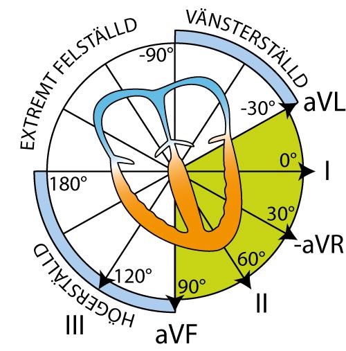 Figur 36. Extremitetsavledningarna och hjärtats el-axel.