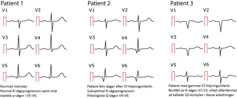 Figur 30. Normala och patologiska Q-vågor.