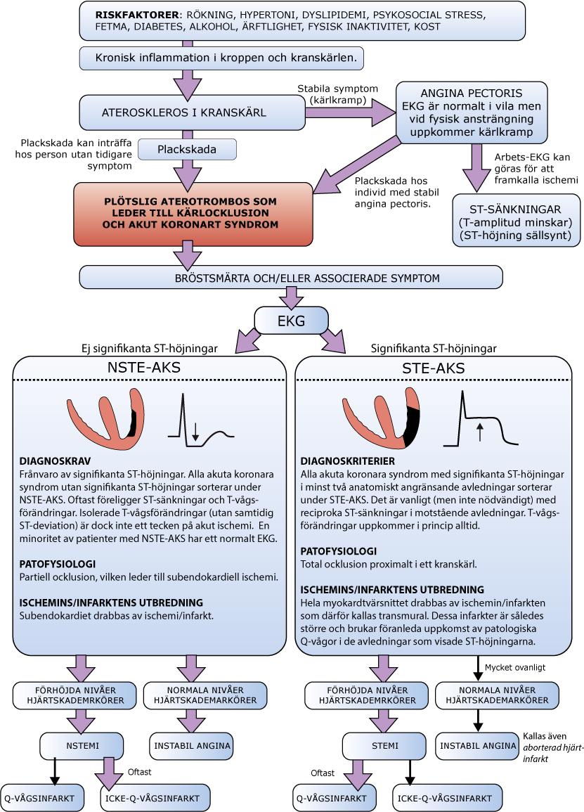 Figur 64. Naturalförloppet vid kranskärlssjukdom och klassificering av akuta koronara syndrom.
