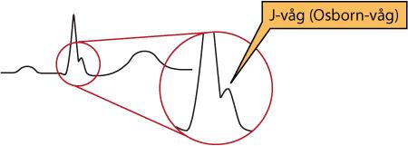 Figur 84. Osborns våg (J-våg).