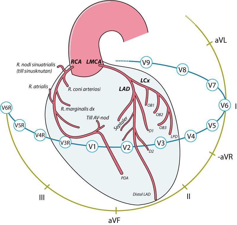 Kranskärlen och EKG-avledningarna