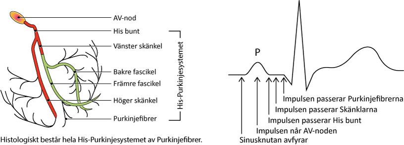 Figur 92. Retledningskomponenter och relation till EKG-kurvan. Delvis efter Chous's Electrocardiography in clinical practice, av B. Surawicz & Timothy Knilans; Elsevier 2008.