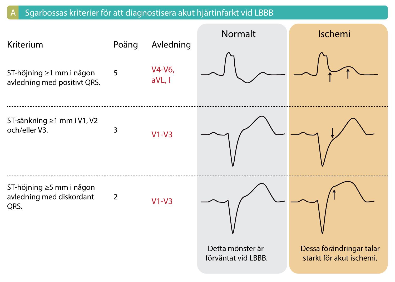 Figur 1A. Sgarbossas kriterier för akut hjärtinfarkt vid vänstergrenblock. Studier visar att ≥3 poäng ger en sensitivitet på 20-36% och specificitet på 90-98%