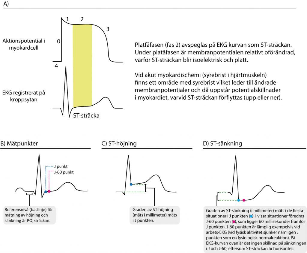 Figur 1. Samband mellan aktionspotentialen och EKG-kurvan. Ischemi påverkar ST-T-sträckan. ST-höjning och ST-sänkning mäts som regel i J punkten. I vissa situationer är det aktuellt att använda J-60 eller J-80 punkten (exempelvis vid arbets-EKG).