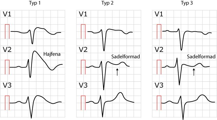 Figur 106. Brugada syndrom, tre varianter.