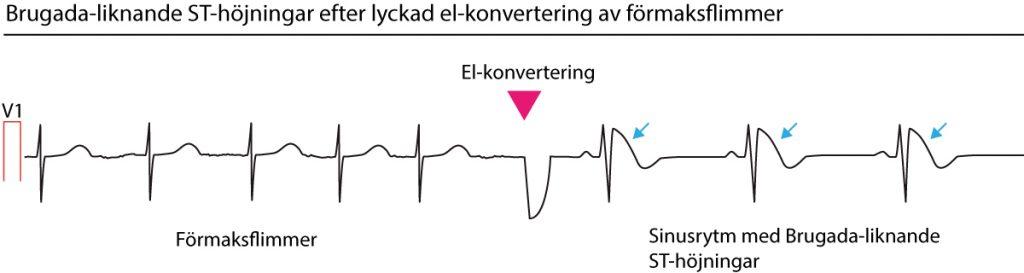 ST-höjning efter el-konvertering