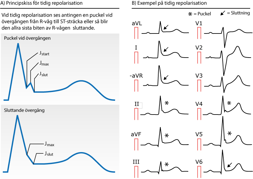Figur 75. Early repolarization (tidig repolarisation).