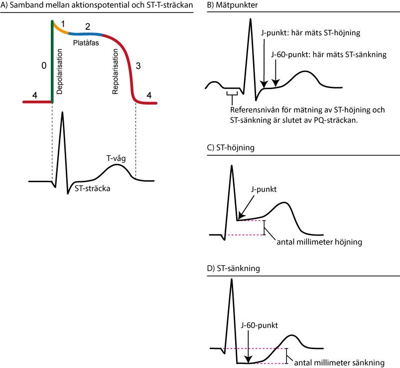 Figur 69. Samband mellan aktionspotentialen och EKG-kurvan. Ischemi påverkar ST-T-sträckan. ST-höjning mäts i J-punkten. ST-sänkning mäts i J-60-punkten som finns 60 ms efter J-punkten.