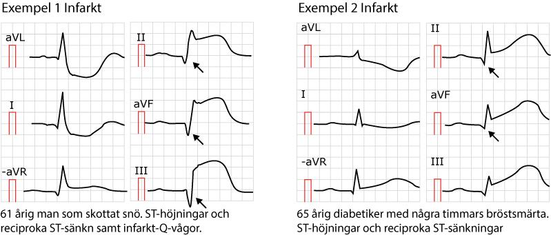 Exempel på ST-höjningsinfarkter (STEMI/STE-AKS). Notera att i båda dessa fall finns faktiskt patologiska Q-vågor (pilar), vilket antingen är gamla infarkter eller så har detta EKG registrerats flera timmar efter symptomdebuten.