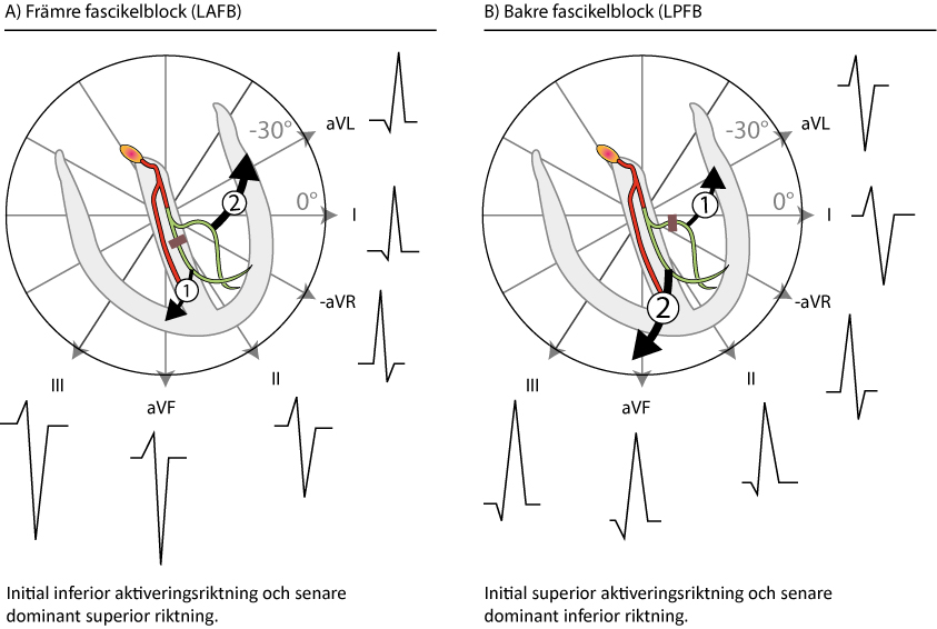 Figur 100. Främre och bakre fascikelblock. Delvis efter GS Wagner (Marriott's Practical Electrocardiography, Elsevier 2007) och AL Goldberg (Clinical Electrocardiography: A Simplified Approach, Elsevier Mosby 2006).