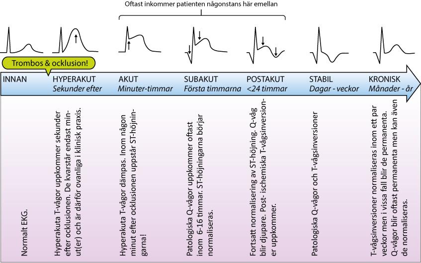 Figur 73. Det elektrokardiografiska naturalförloppet vid STE-AKS.
