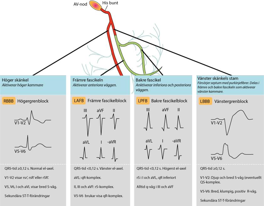 Figur 98. Intraventrikulära retledningshinder. EKG-förändringar och hindrets lokalisation.