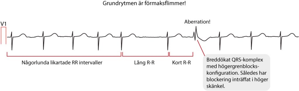 Figur 36. Ashmans fenomen.