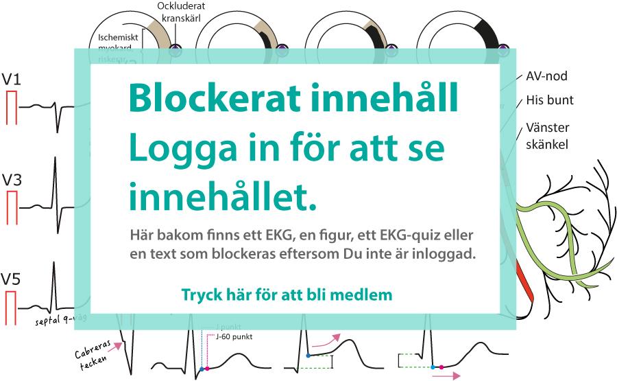 EKG tolkning diagnostik bok