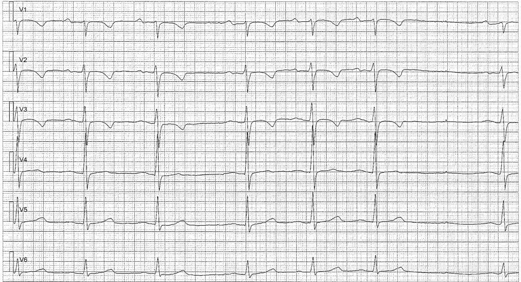 Figur 4. Sinusarytmi med sinuspaus. Negativa T-vågor är normalt i V1–V3 (patienten var 15 år gammal när EKG registrerades).