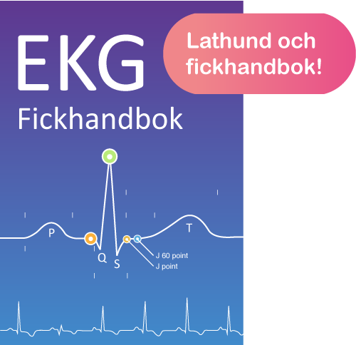 EKG Lathund fickhandbok pdf ladda ner