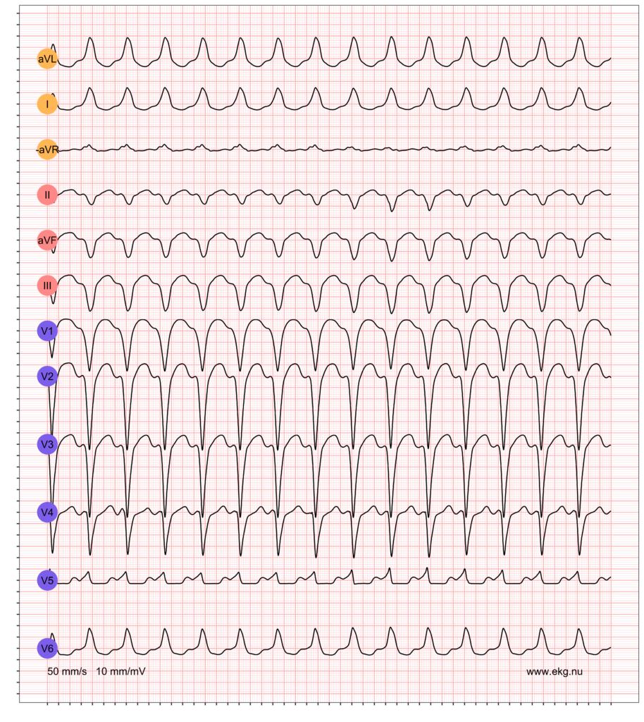 EKG exempel 1. Patient med WPW-syndrom (pre-excitation med takyarytmier). Patienten har en känd WPW och detta EKG registreras under en pågående supraventrikulära takyarytmi.