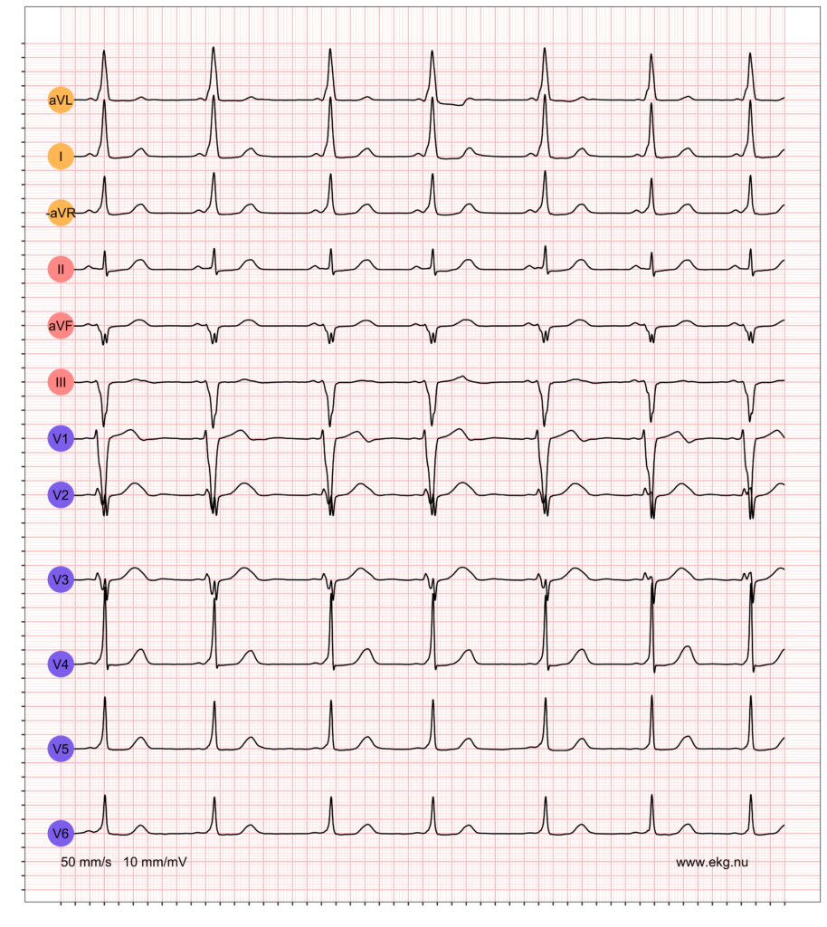 EKG exempel 2. Patient med pre-excitation på vilo-EKG.