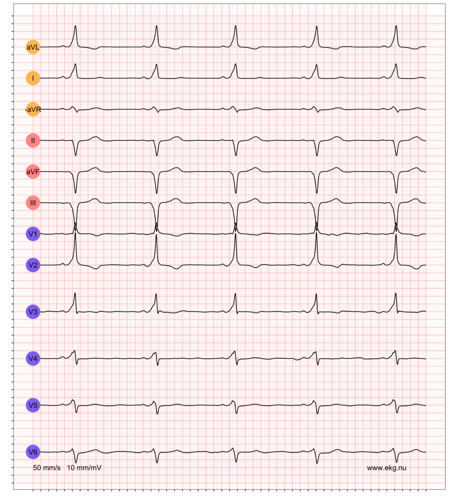 EKG exempel 3. Patient med pre-excitation på vilo-EKG.