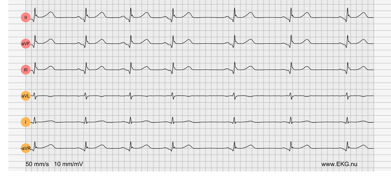 EKG Test