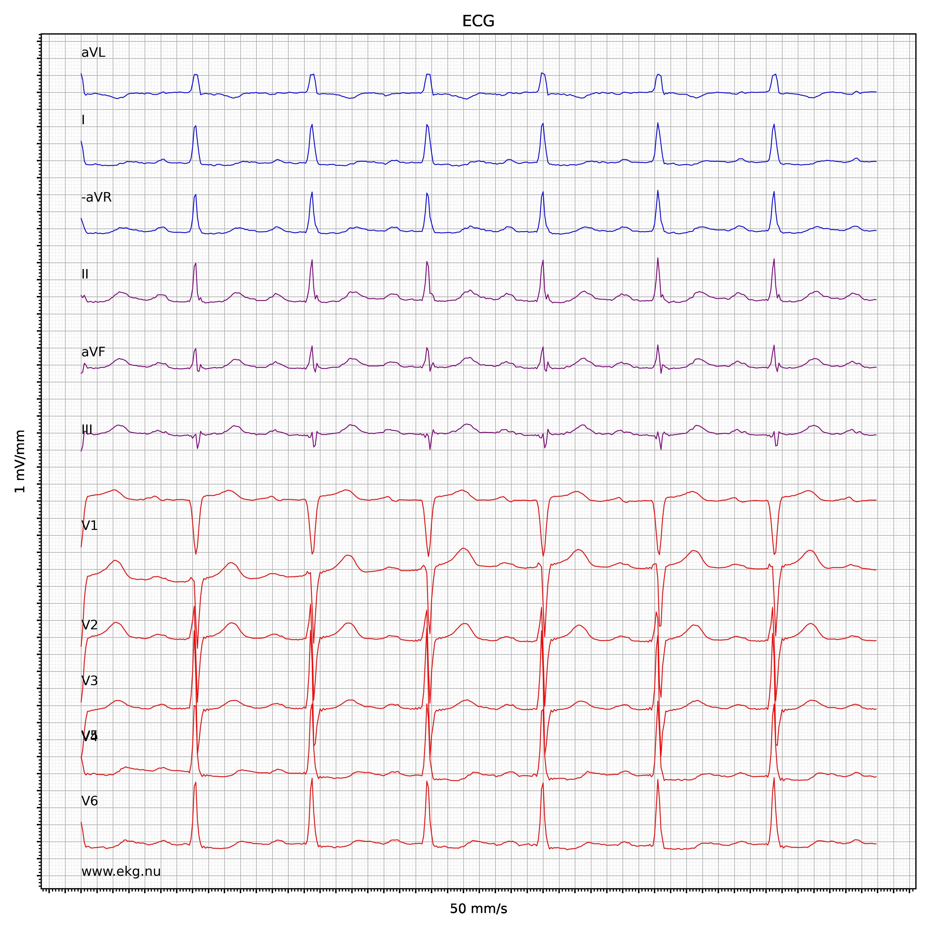 EKG test tolkning