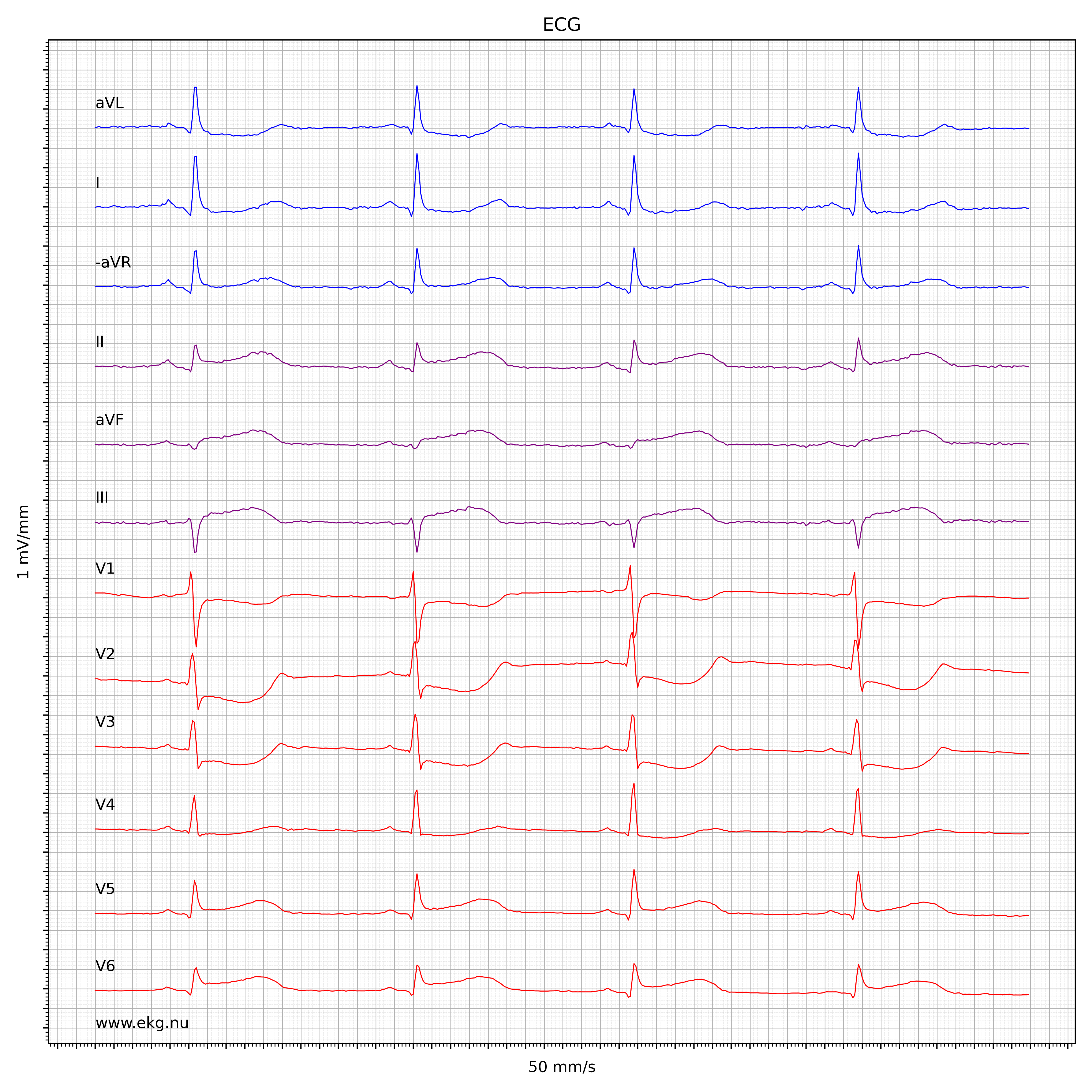 EKG test 9