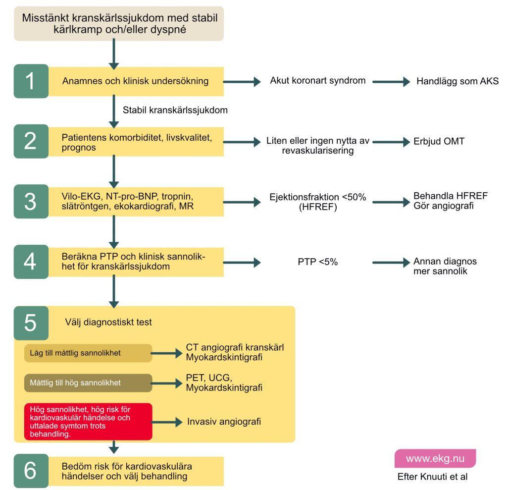 Utredning och handläggning av angina pectoris (kranskärlssjukdom, koronara syndrom)
