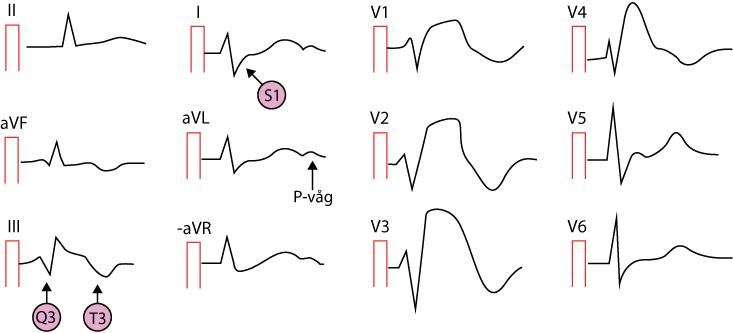 EKG med lungemboli (S1Q3T3-mönster)